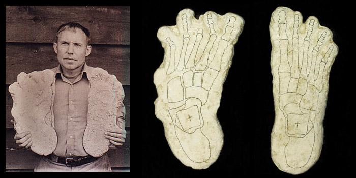 Rene Dahinden Cripple foot cast